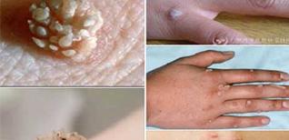 Trị mụn -  Biện pháp trị mụn cóc bằng vôi ăn trầu, điều trị mụn tận gốc